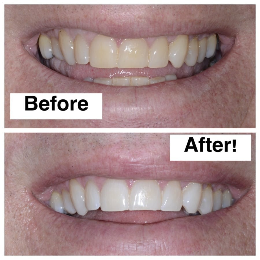 Discover Zoom Teeth Whitening At North Seattle Dental