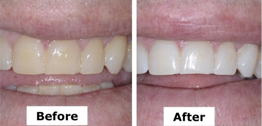 A brighter smile in two hours