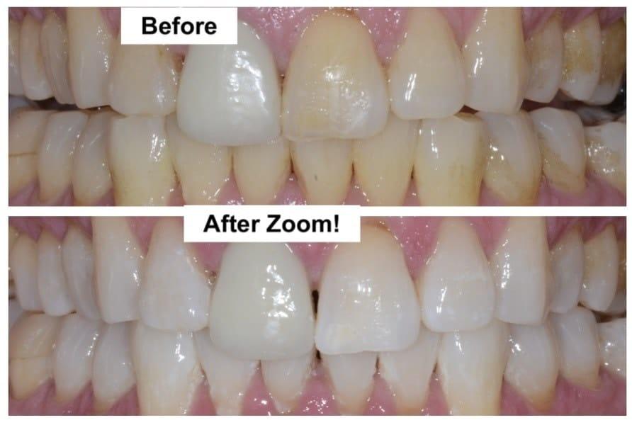 Dan S Zoom Whitening North Seattle Dental